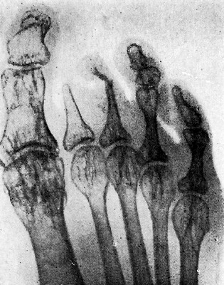 Остеолиз при эндартериите ног