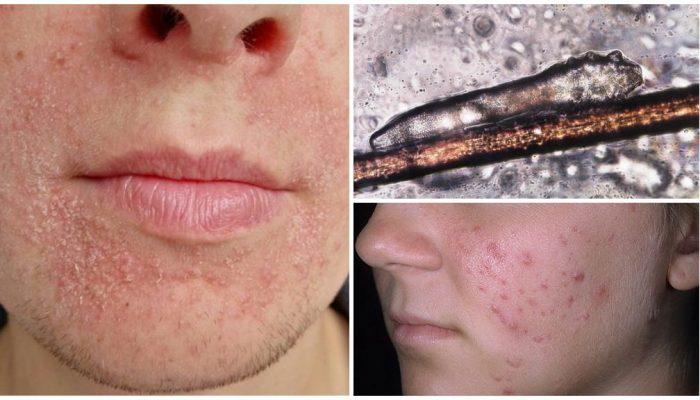 Почему шелушится и чешется лицо? Основные причины зуда кожи и методы лечения