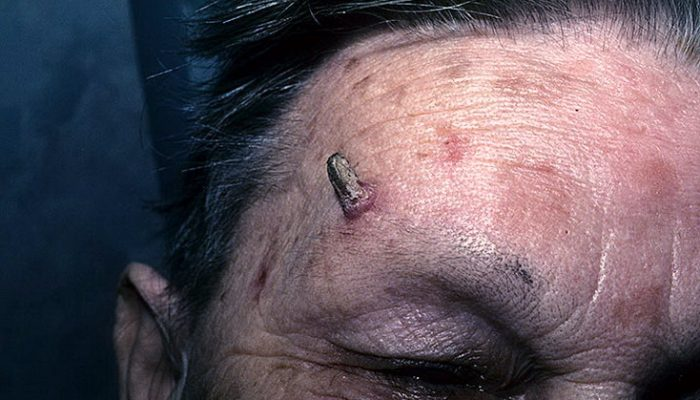 Что такое кожный рог у человека? Причины и эффективные методы лечения
