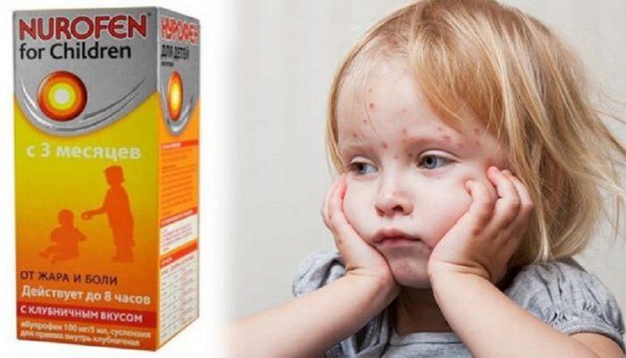 Можно ли давать Нурофен (ибупрофен) при ветрянке у ребенка? Комаровский о сбивании температуры