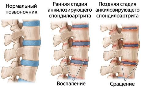 Cпондилоартрит серонегативный: стадии развития болезни