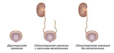 Причины и разновидности аплазии почки