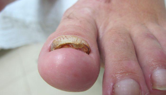 Боль в ногтях на руках и ногах