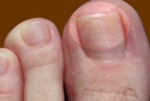 Как выглядит грибок ногтей на ногах: фото