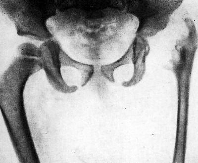 Выраженная атрофия левой бедренной кости