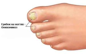 Грибок ногтей, к какому врачу обратиться?