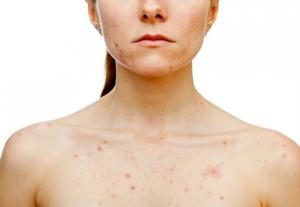 угри - симптомы опасных процессов в организме