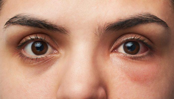 Почему возникают отеки под глазами? Таблетки, народные средства и другие способы лечения