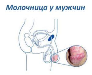 Кандидозы у мужчин причины появления и симптомы (с фото)