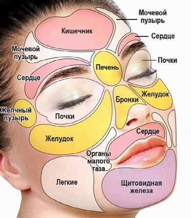 О проблемах с какими органами сигнализирет появление внутренних прыщей на лице