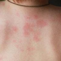Красные пятна на спине могут свидетельствовать о различных заболеваниях кожи