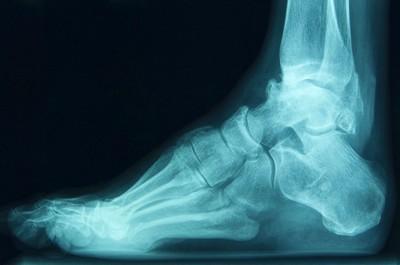Нарушение образования костной мозоли после перелома