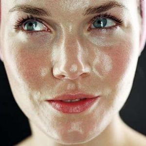 Причины жирной кожи