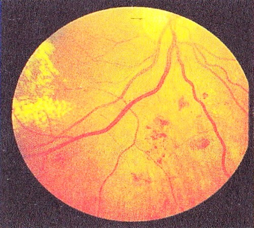 Далеко зашедшая диабетическая непролиферативная ретинопатия