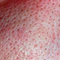 Устранить расширенные поры на лице можно при помощи салонных и домашних процедур