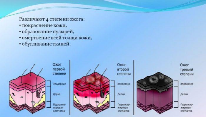 Ожоги и отморожения: общая хирургия