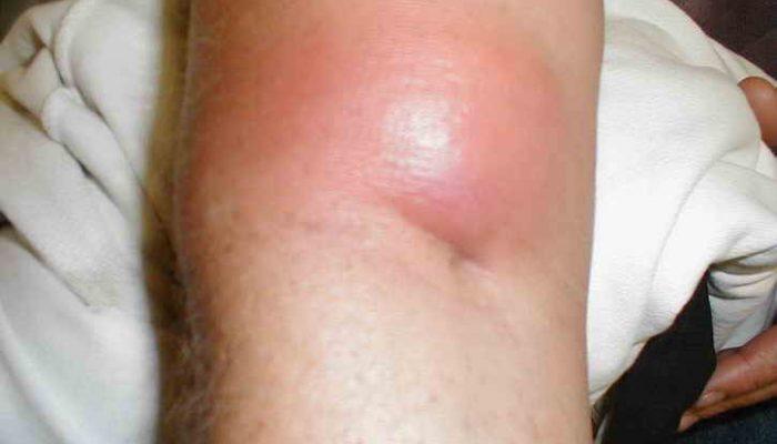 Абсцесс: причины, симптомы, отличие от флегмоны