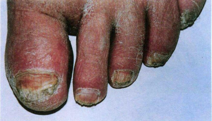 Болезни ногтей на ногах