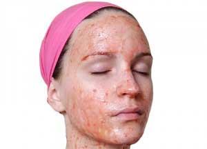 Нанесение маски из клубники на лицо