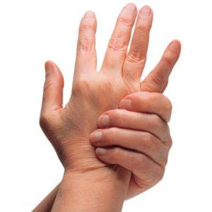 Артрит кистей рук: причины и симптомы