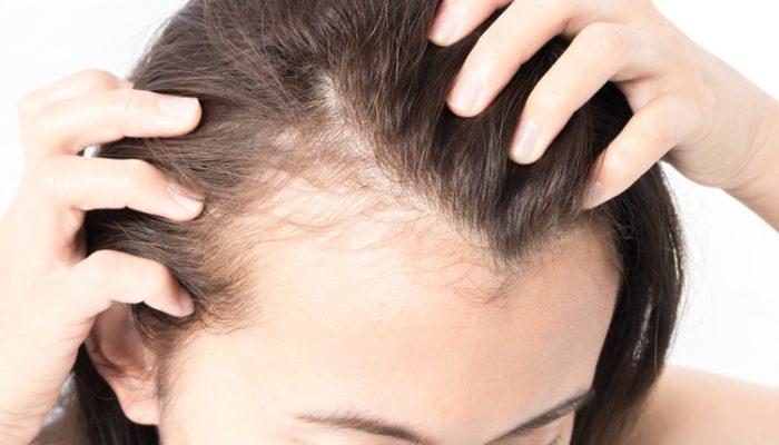 Почему волосы выпадают с луковицей и как это лечить? Советы трихологов