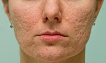 как избавиться от шрамов от прыщей на лице