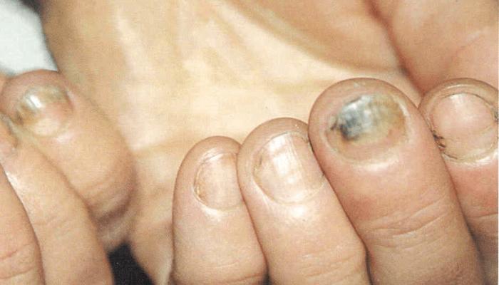 Заболевания ногтей на руках и их лечение