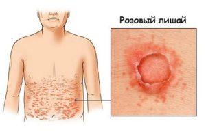 Стандартное течение заболевания