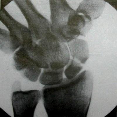 Старый перелом ладьевидной кости (месячной давности)