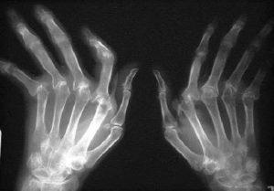Диагностика и лечение псориатического артрита