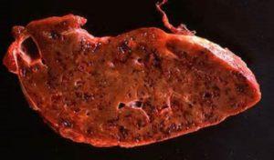 опасное заболевание фасциолез - что это такое, симптомы и методы лечения.
