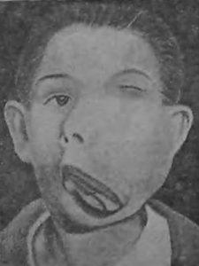 Мальчик с громадной хондросаркомой верхней челюсти