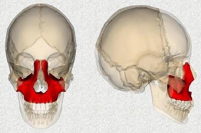 Пластика верхней челюсти