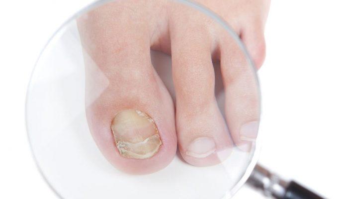 Что такое онихомикоз ногтей? Причины, симптомы и методы лечения в домашних условиях