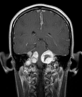 Нейрофиброматоз Реклингхаузена (фото)