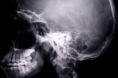 Дифференциальная диагностика менингиом по данным краниографии