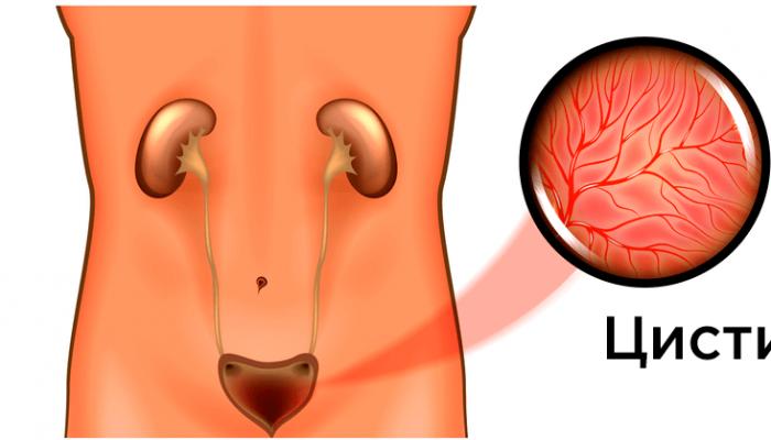 Почему возникает зуд в уретре у мужчин без выделений? Лечение в зависимости от причины проблемы
