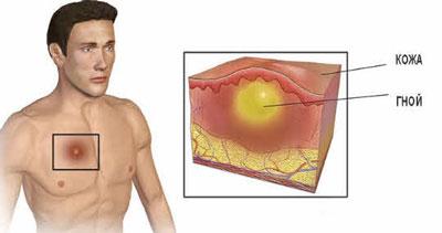Скопление гноя под кожей из-за попадания инфекции в зону воспаления