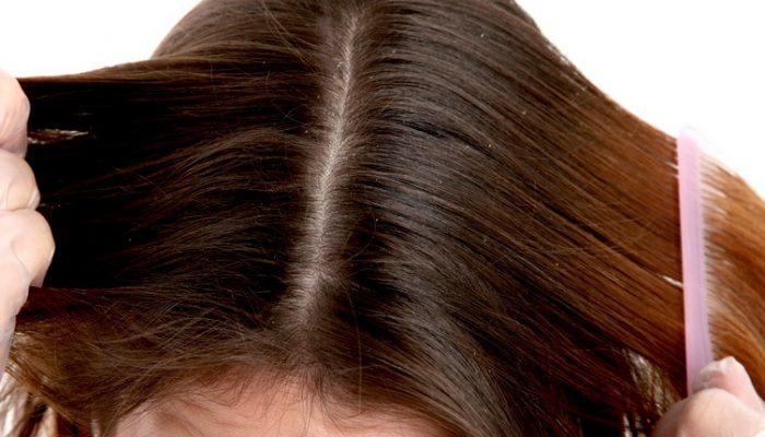 Что делать, если после окрашивания волос чешется и болит кожа головы? Лечим ожог