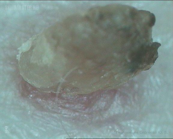 кератопапиллома фото