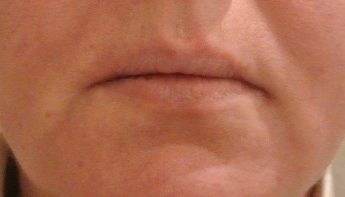 Коррекция носогубных складок и морщин марионетки