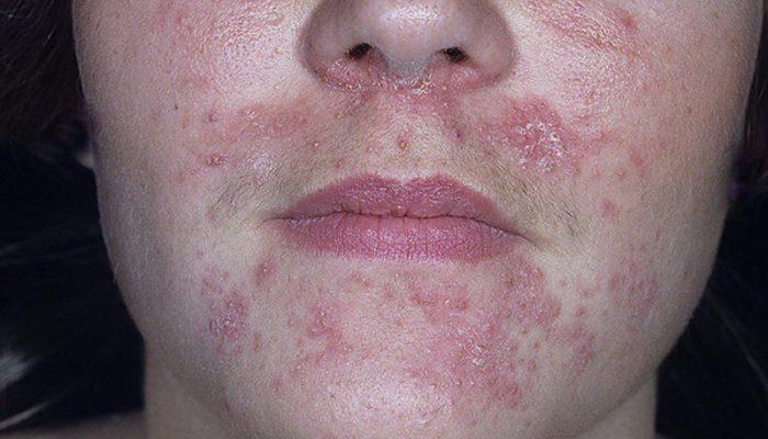 Розацеаподобный дерматит лица: лечение