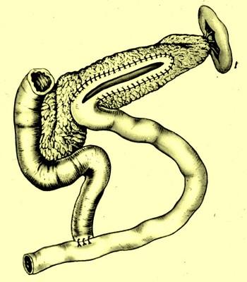 Панкреатикоеюностомия