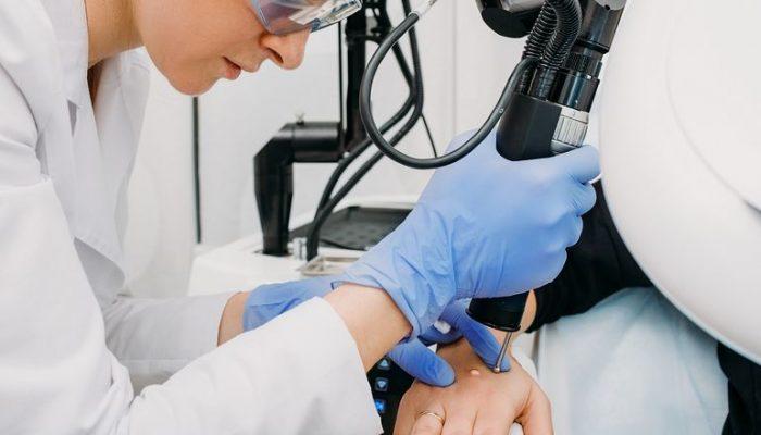 Причины бородавок на руках, а также эффективные и современные методы лечение