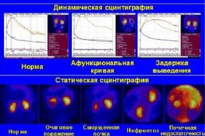 Типы почечного сканирования