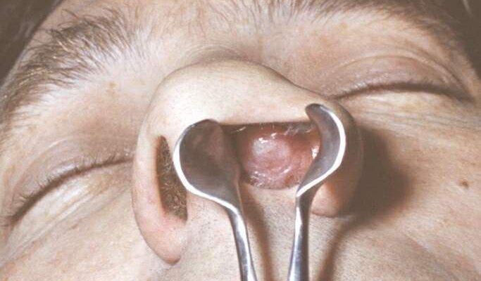 Почему образуются папилломы в носу? Симптомы, диагностика и лечение болезни