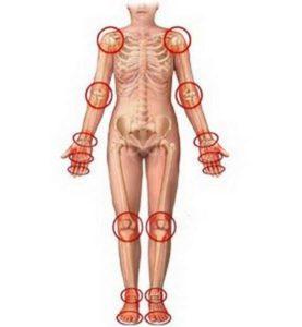 Артрит суставов: классификация