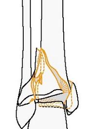 Полный внутрисуставной простой, метафизарный многооскольчатый перелом голени