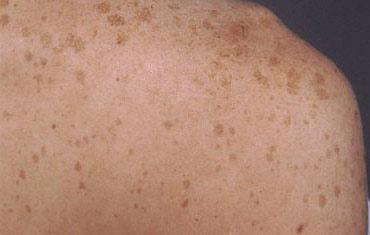 Лентиго – доброкачественные высыпания на коже в виде небольших пятен тёмно-коричневого цвета.