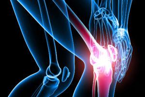 Артрит суставов: симптомы